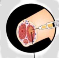 العلاج الجذرى للعقم وضعف الانتصاب